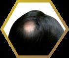 tiny-spot-baldness