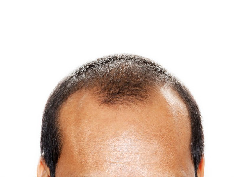 Jonsson Protein m shaped hairline and hairloss related issue