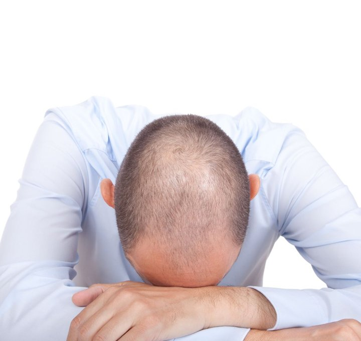 Jonsson Protein shaped hair loss for bald head men