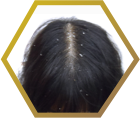 tiny-dandruff-related-hair