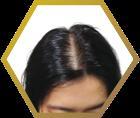 tiny-female-pattern-baldness