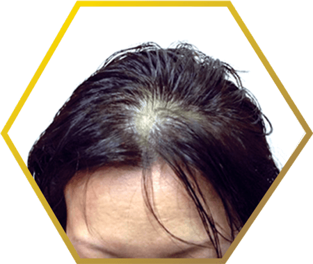 post menopausal hair loss | causes & treatment, Skeleton
