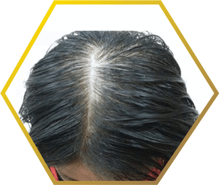 post-natal (post-menopausal) hair loss- jonsson protein singapore